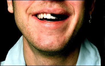 Snus må vara äckligt och oattraktivt - men förbud är väl ändå att ta i?